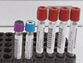 Blutröhrchen-Etiketten nach nur 3 Sekunden gedruckt und aufgebracht