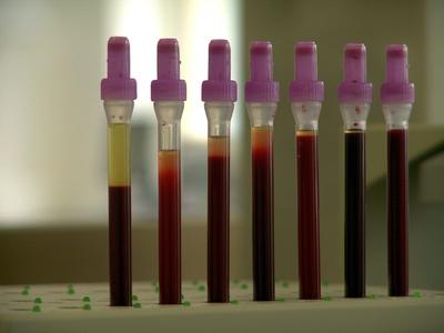 Thermodirektdruck zur Kennzeichnung von Blutuntersuchungen